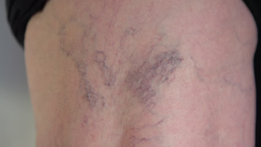 SLOW MOTION, CLOSE UP, MACRO: Twisting veins curving down the back of unrecognizable senior lady's knee. Close up examination of aging woman's coronary problem. Detailed shot of purple varicose veins. | Shutterstock HD Video #1006712161