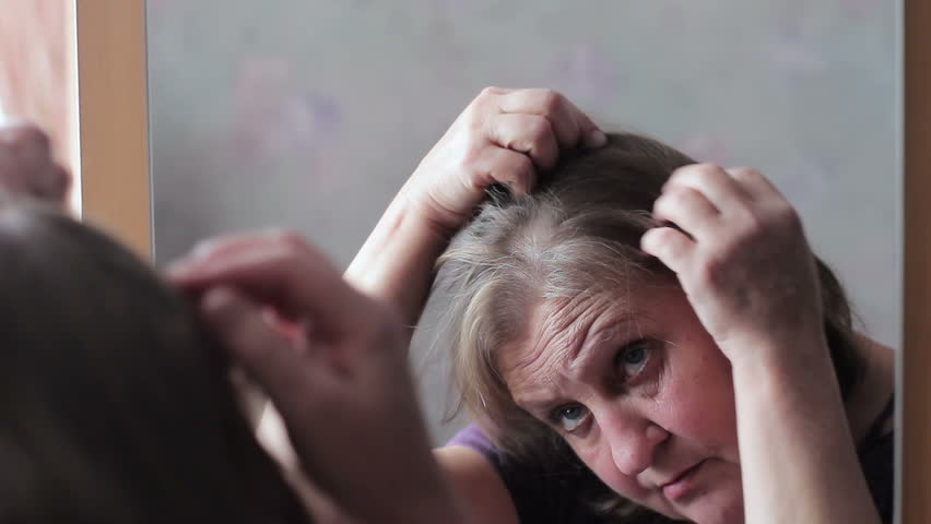Middle-aged woman concerned by hair loss
