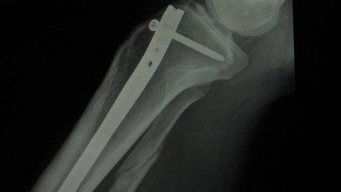 Titanium rod and screw internal fixation in broken leg close up