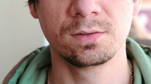 Man touching sores on the lips. Herpes. Lip treatment. Close-up of the man's lips with herpes. Front view.