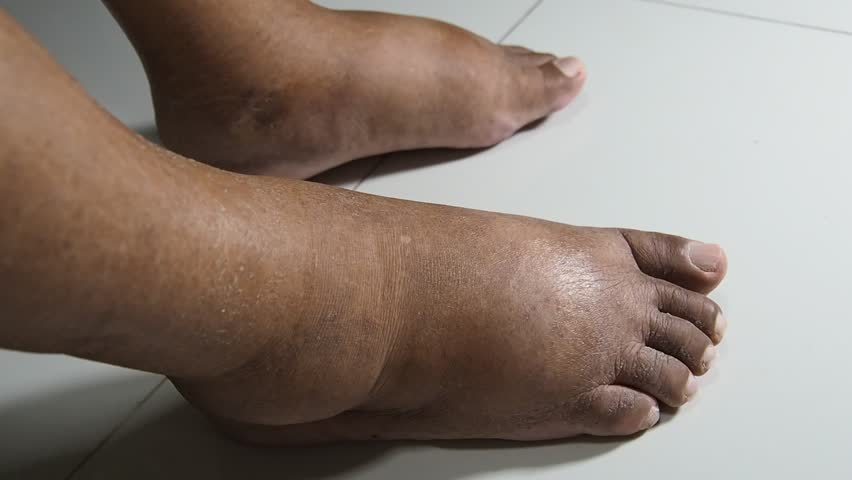 The feet of people with diabetes, dull and swollen. Due to the toxicity of diabetes placed on a white background. Fingers hit the back of the diabetic foot. To test foot swelling.