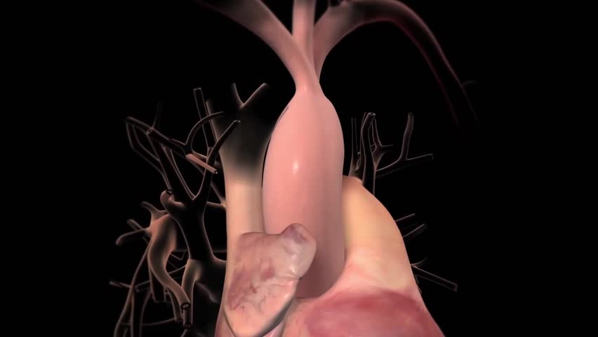 Aortic Aneurysm and Dissection