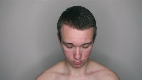 Teenage boy with puberty acne problem