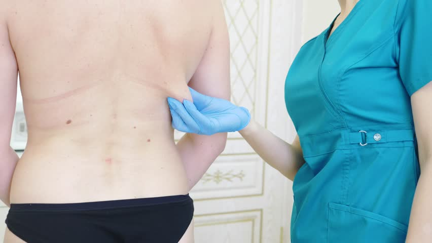thick woman prepares to medical liposuction. Doctor draws marker, mark on the back. 4k