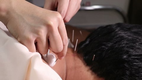 Traditional Chinese Medicine Acupuncture to treat men