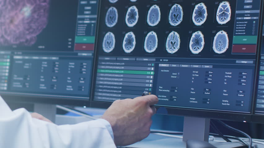 Close-up on the Hands of the Scientist Showing and Pointing at CT/ MRI Brain Scan Images on a Personal Computer in Laboratory. Shot on RED EPIC-W 8K Helium Cinema Camera.