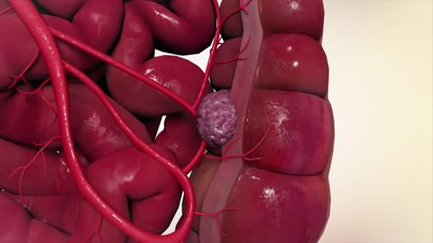 Polyp growing in the intestine. 3D-Rendering. Colorrectal polyps area growth of
