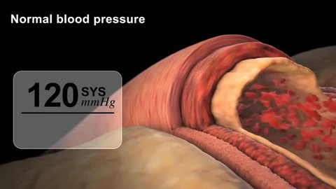 Ideally, we should all have a blood pressure below 120 over 80 (120/80). This is the ideal blood pressure for people wishing to have good health.