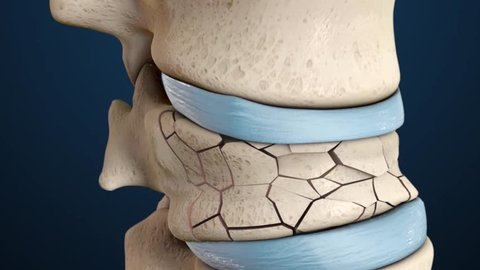 3D animation of the spine fracture