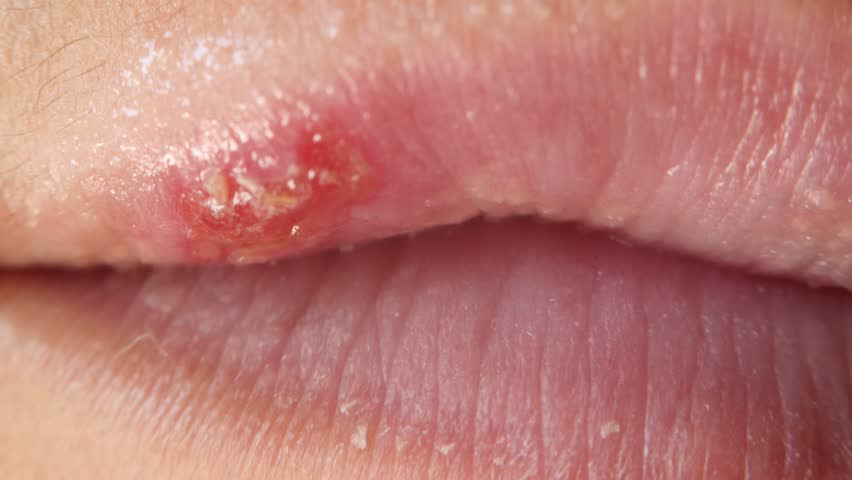 Ulcers from herpes on female lips macro. Colds on the lips. | Shutterstock HD Video #1014631661