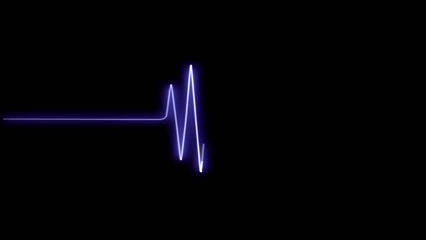 Heart rhythm | Shutterstock HD Video #10169741