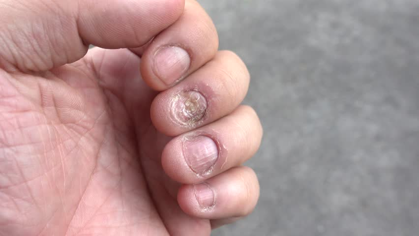 4k00:12The man scratches his nail fungus. Fungal infection on nails ...