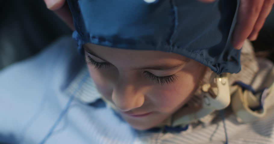A nurse helps prepare a young girl as patient of clinic to be ready for a EEG test. Pediatrician in hospital doing an electroencephalogram to child. Epilepsy, autism, head injury management. Close up   Shutterstock HD Video #1020966451
