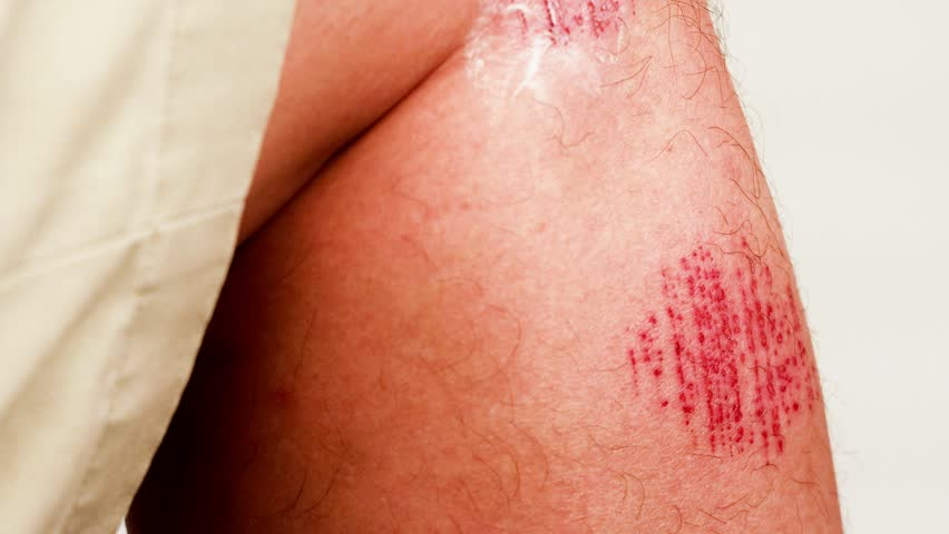 Person applying antiseptic cream onto painful wound   Shutterstock HD Video #1021594351