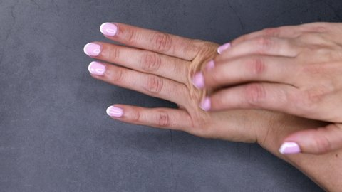 Itching hands, scratch arms. Skin care and health concept
