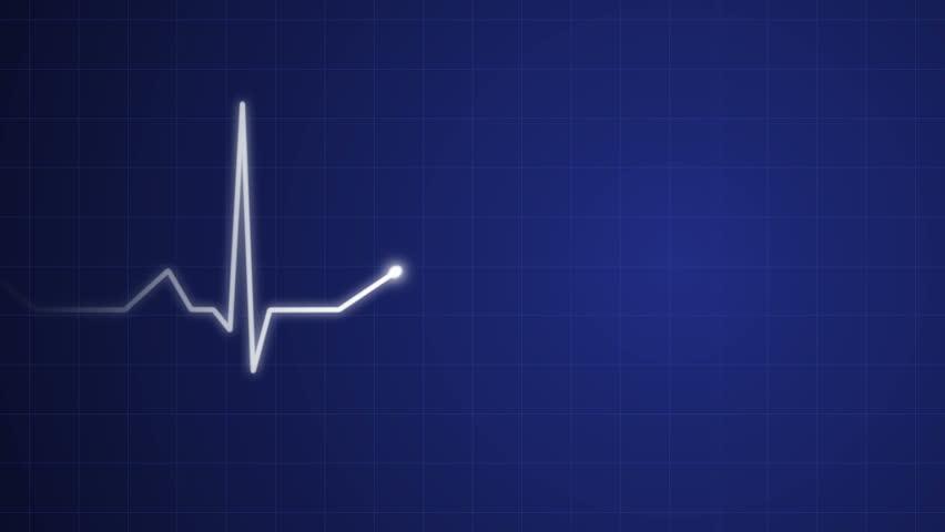 4k An animated heart monitor EKG flatlines, uhd stock video animation