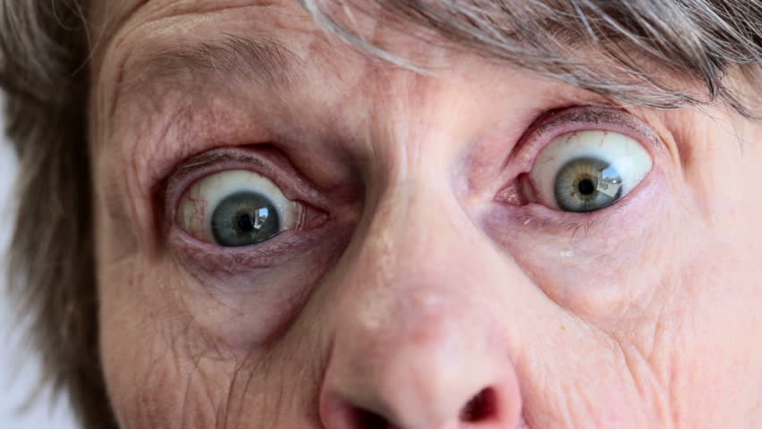 Close up of old woman's face looking down, then to camera; she gets startled and wide eyed and blinks rapidly.
