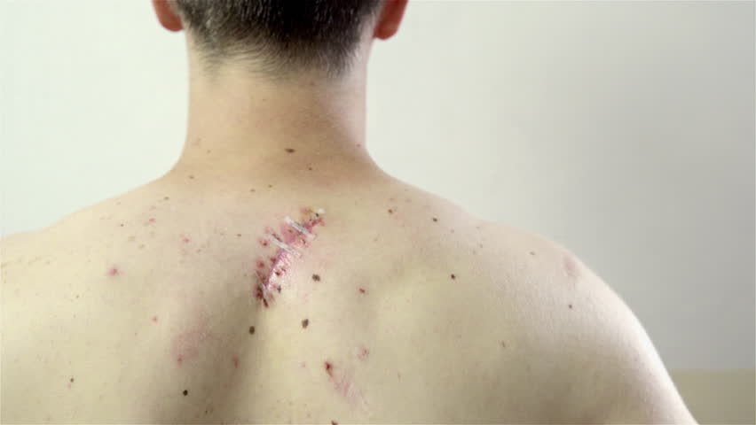 Big fresh scar on person back 4K. Wound drying on person back under neck near the backbone. Big cut between birthmarks. | Shutterstock HD Video #12696641