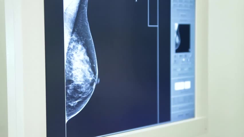Header of mammography