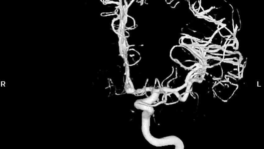 Cerebral Angiogram 3D | Shutterstock HD Video #1343821
