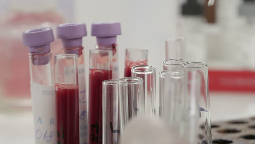 Female lab technician with protective gloves holding pipette and testing blood samples on hospital ward for blood transfusion, hands close up. Test tube. Blood sampling,analyzing,no grading,raw video.