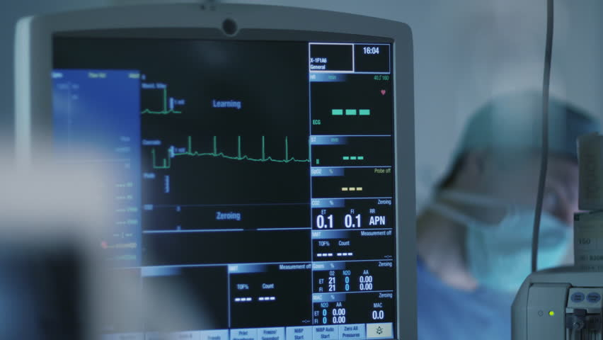 Shot of ECG Monitor in Operating Room During Surgical Operation. Shot on RED Cinema Camera.