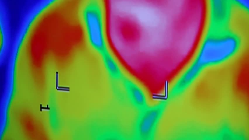 Infrared radiation thermal imaging camera of a man