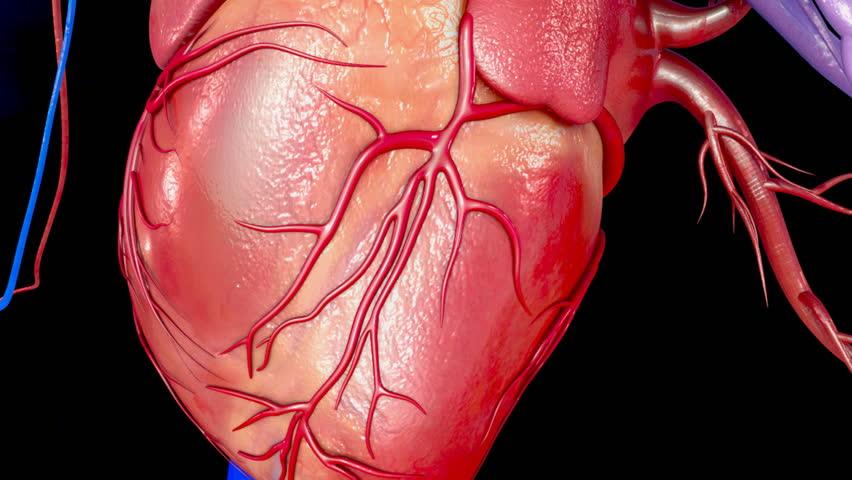 Header of myocardial infarction