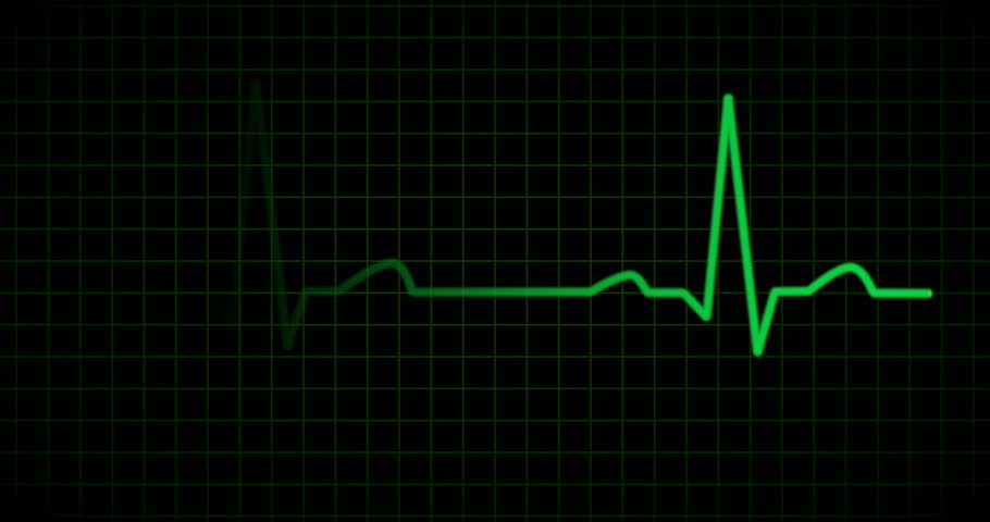 EKG or ECG line showing constant heartbeat in green on pattern background with sound