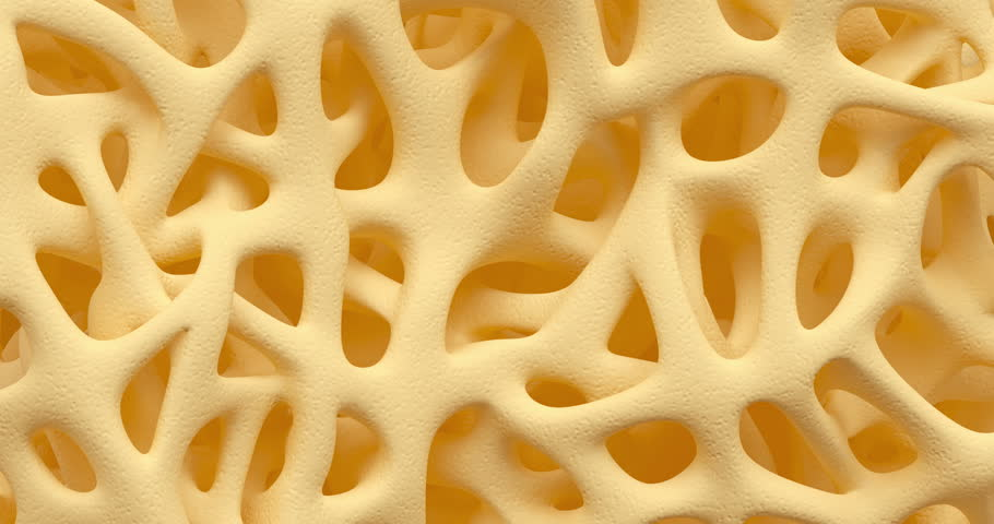 Developing of human bone osteoporosis spongy texture from normal to sick, time lapse 3d animation