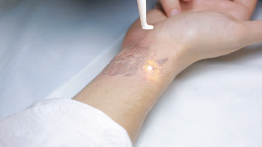 Laser Tattoo Removal with Hand Stock Footage Video (100% Royalty-free)  22185061 | Shutterstock