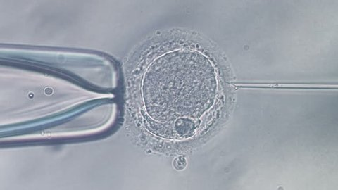 Viewing through microscope on icsi in vitro fertilization procedure, needle puncture of human egg and sperm injection.