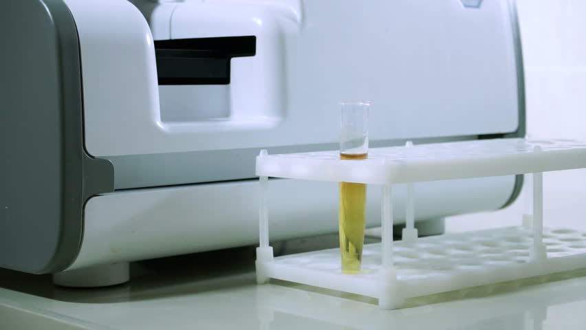 Laboratory analysing of urine. Male laboratory worker conducting a sample of urine at modern equipment. HD