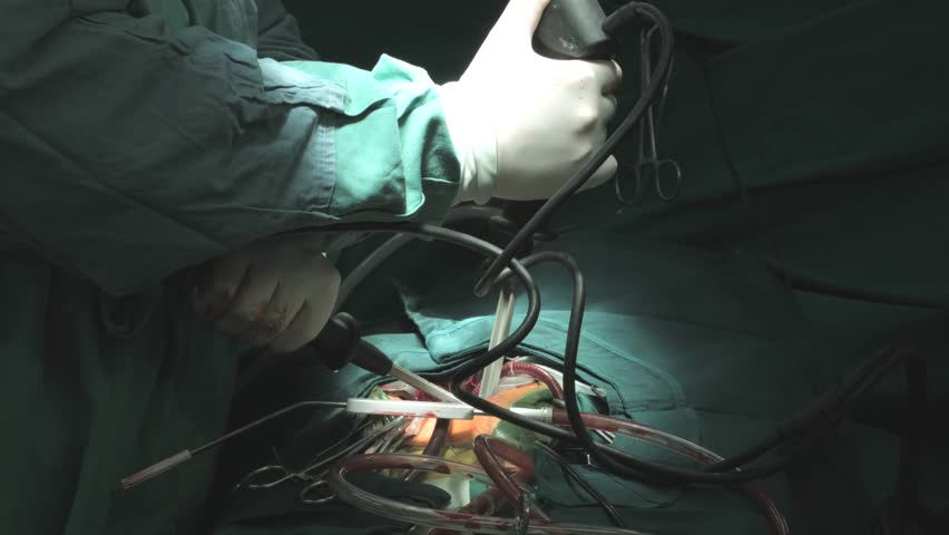 Surgical Team In Protective Clothing Performing Operation In Hospital Operating Theater. Doctors Making Bloody Cut With Scalpel. Surgery On Specialized Clinic.