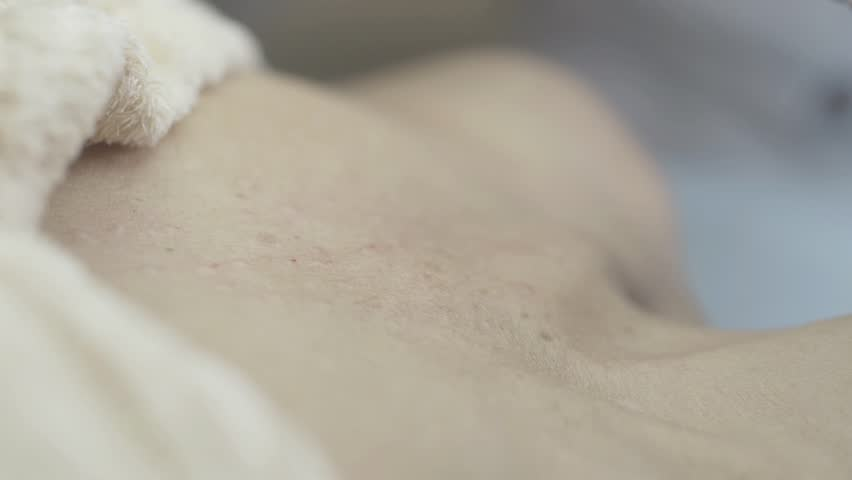 Close-up of a botulinum toxin injections in the beauty salon | Shutterstock HD Video #26086721