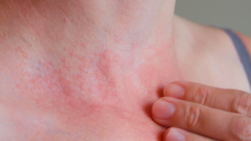 Woman scratch the itch with hand, Neck. Red spots on the neck, allergies, psoriasis, insect bite. Malaria. Sunburn. Sun burn