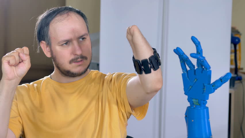 Man with the amputated hand controls robotic hand. 4K.