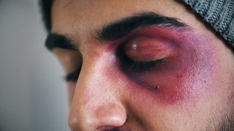 Wounded and livid young man's eye- close up