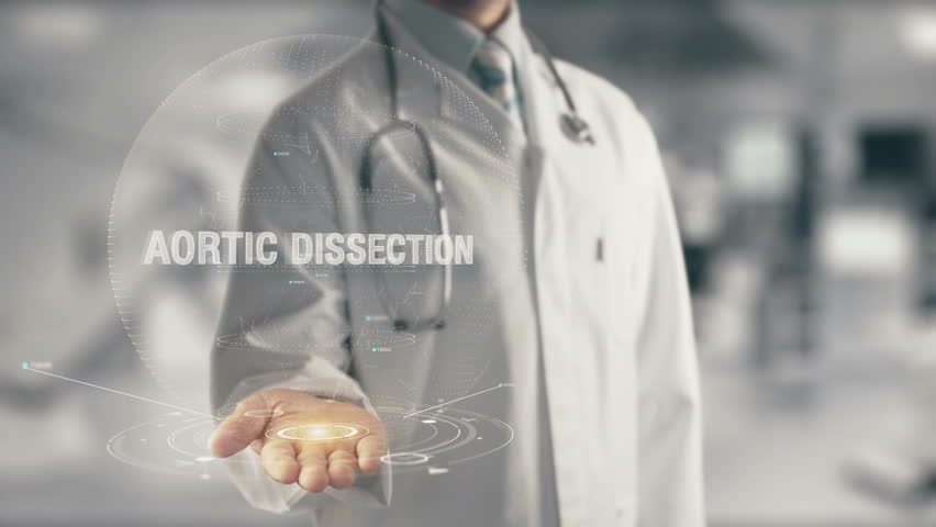 Doctor holding in hand Aortic Dissection