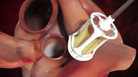 Digital detailed cardiac valve replacement surgery of the aortic tricuspid semilunar valve with prosthetic valve in anaesthetized patient