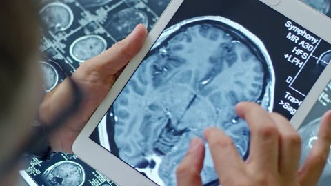 Top view of unrecognizable male doctor holding tablet and looking at CT scan with axial plane of human brain