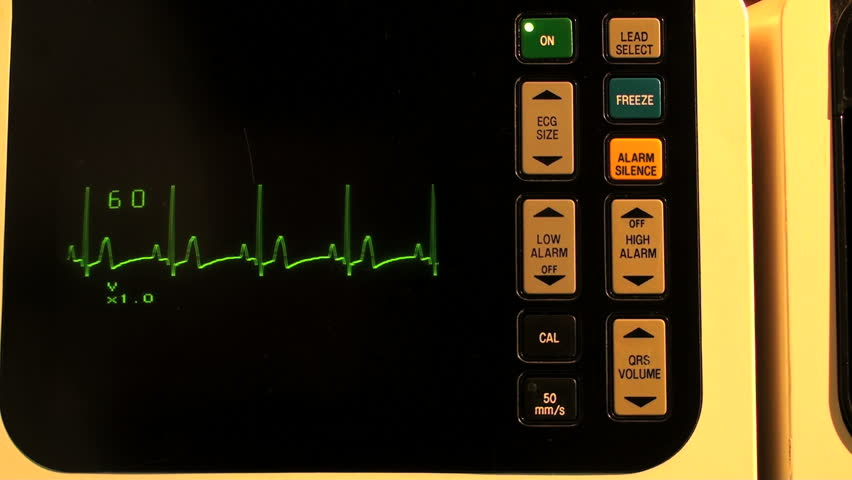 EKG defibrillator full screen SEAMLESS LOOP - with sound, HD 1080