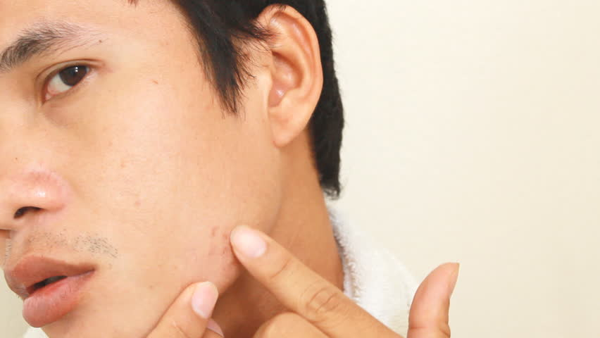 Asian Man Face With Skin Problem