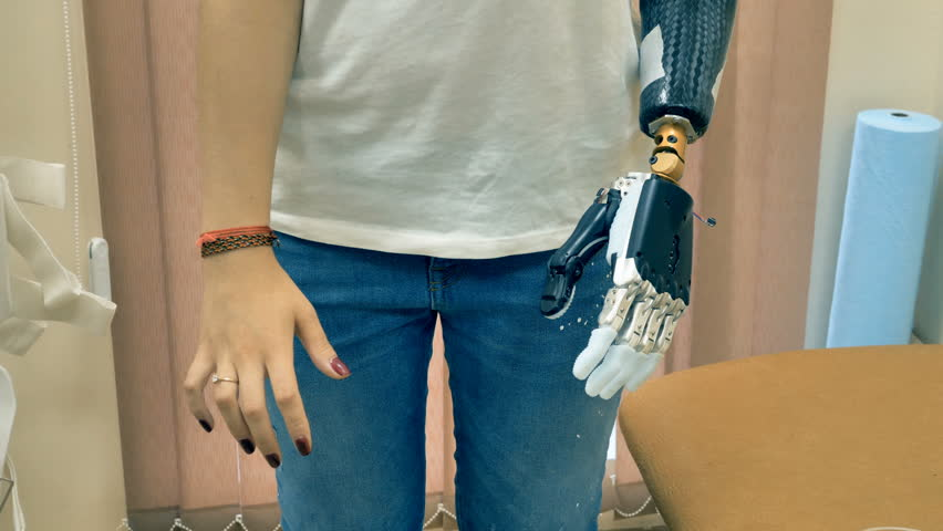 Bionic arm connected to a disabled woman hand. 4K. | Shutterstock HD Video #32297080