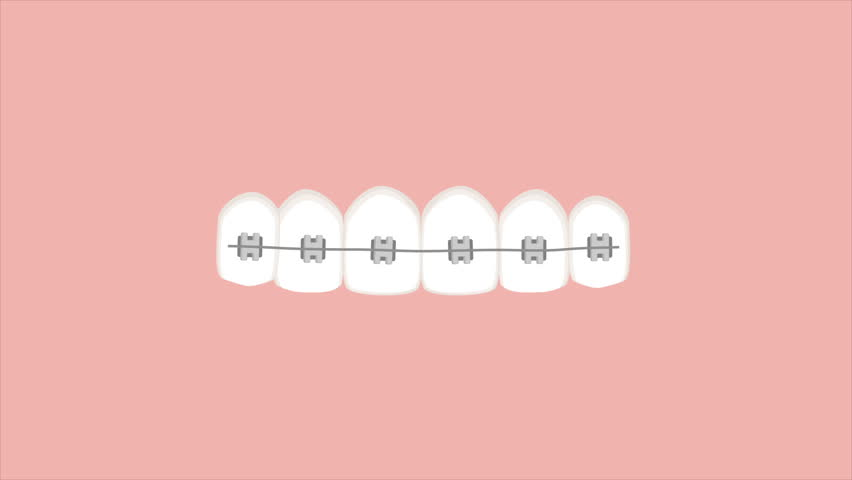 Video animation of braces straightening teeth