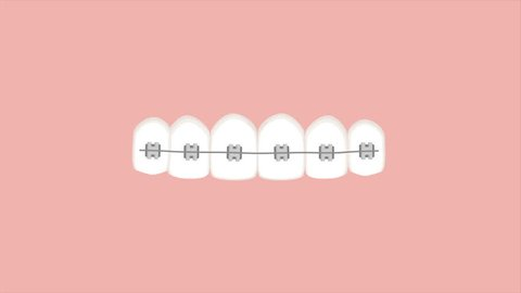 Video animation of braces straightening teeth