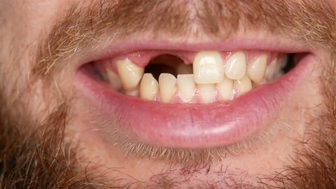 Close-up of the mouth. A man shows his denture