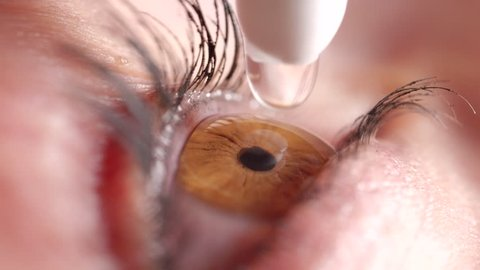 SLOW MOTION MACRO: Shiny clear brown eye twitches before application of eye drops to sooth irritation. Mascara covered lashes flinch when droplet hits eyeball. Female applying water drops to eyeball.