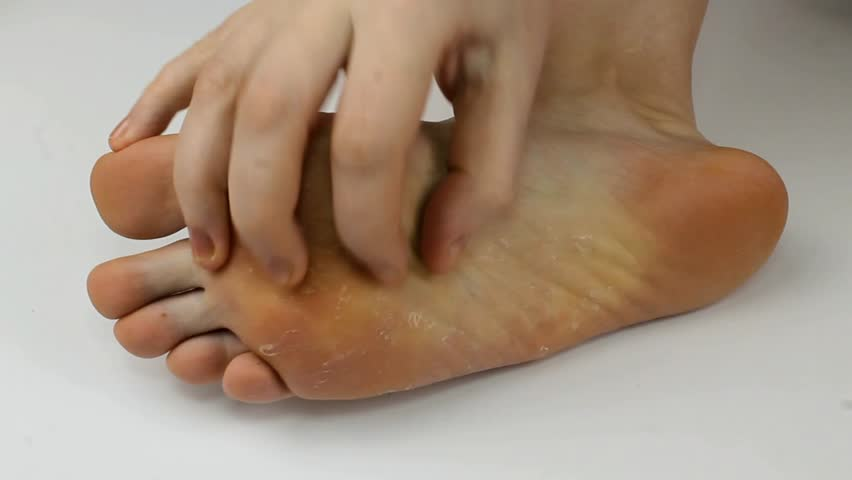Fungus of foot close-up, isolated on white background. The concept dermatology, treatment fungal and fungal infections in humans. Macro video human feet.  | Shutterstock HD Video #34645081