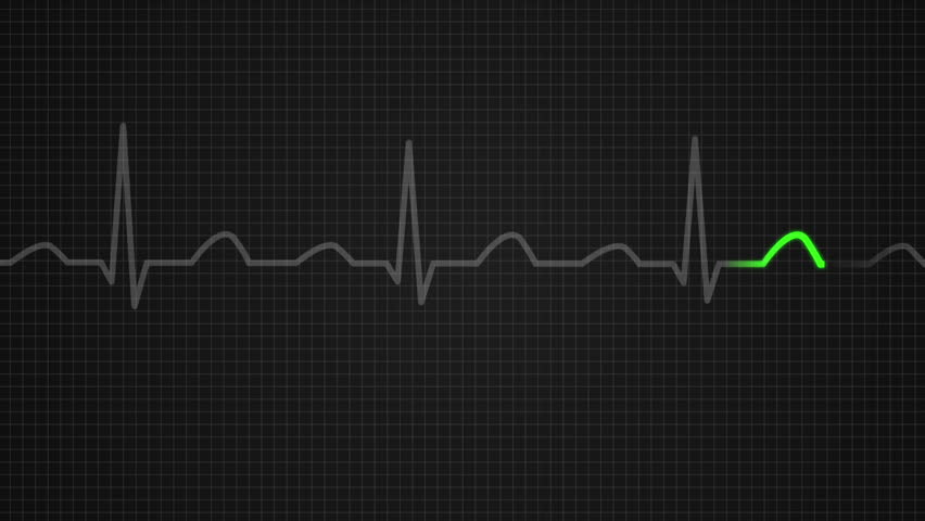 Vital signs monitor displays ekg heart rate oxygen saturation animation of schematic diagram showing values for a death seen on ecg screen orange highlights ccuart Images